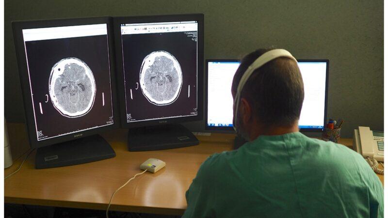 Trattato con successo a Casa Sollievo in Radiologia Interventistica un raro caso di compresenza di aneurisma carotideo e fenestrazione di una arteria intracranica adiacente