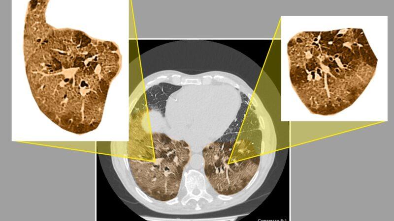 IRCCS Casa Sollievo: la diagnosi di Covid-19 attraverso la valutazione clinica e radiologica si dimostra affidabile e mostra alta sensibilità e specificità anche in pazienti con tampone nasofaringeo negativo