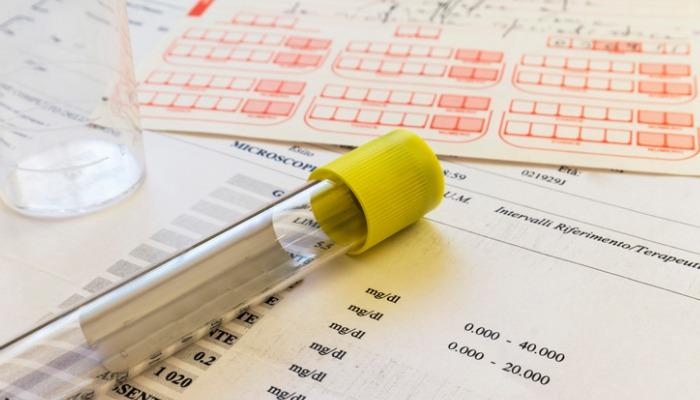 Esenzioni del ticket sanitario per reddito in Regione Puglia : proroga fino al 31 luglio 2021